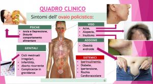 sindrome dell'ovaio policistico e dieta